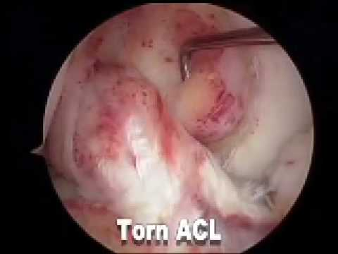 ACL Replacement Surgery by Dr. Spero Karas
