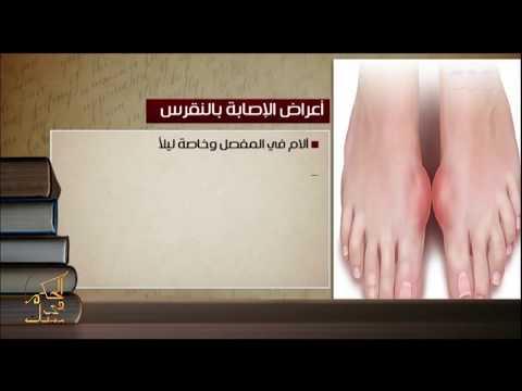 الحكيم في بيتك | الدكتورة داليا فايز توضح أهم اعراض الاصابة بالنقرس