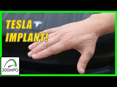 Tesla key-card Implant!   Why and How?