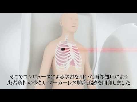 【東芝】重粒子線がん治療向け腫瘍追跡技術