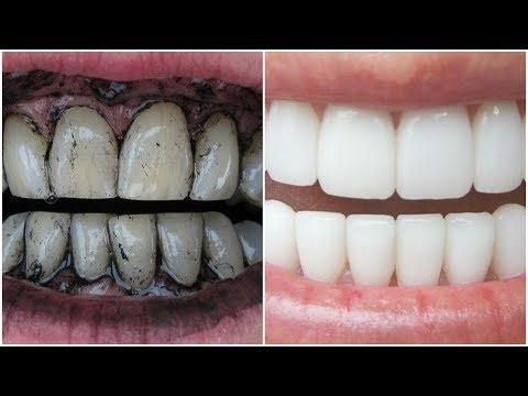 3 Way to Whiten Your Yellow Teeth Naturally