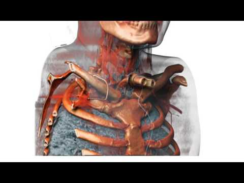 3D Upper Body With Throat Tube