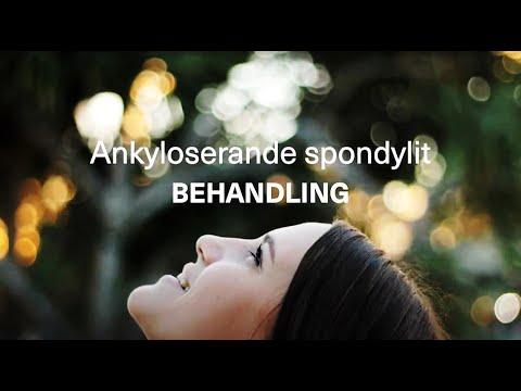 Behandling av ankyloserande spondylit