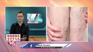 Reasons backslashu0026 Treatment For Varicose Veins   Avis Hospitals   Dr. Rajah. V. Koppala   V6 Good Health - V6NEWSTELUGU