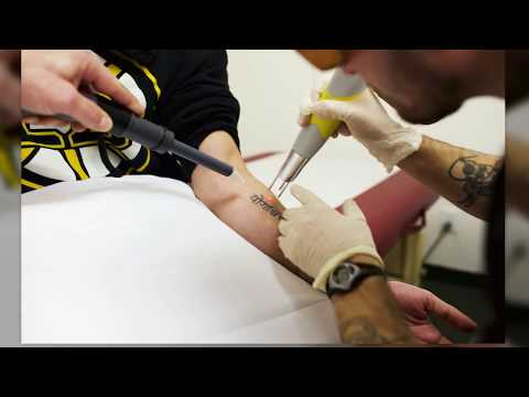 Best Cost Laser Tattoo Removal Top Doctor Clinic Mississauga
