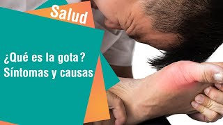 ¿Qué es la gota Síntomas y causas frecuentes | Salud