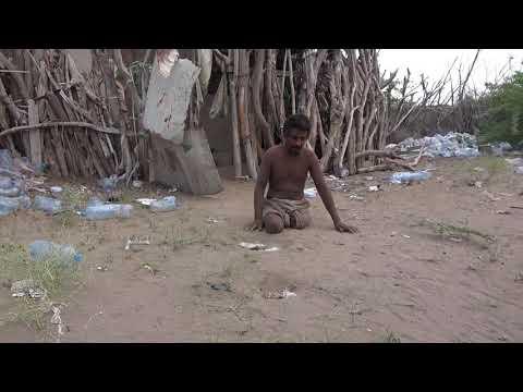قصة مأساة: لغم أفقده نصف جسده وعقله؛ المواطن: (توفيق محمد) ضحية أخرى لألغام الحوثي