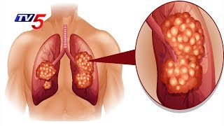 Lung Cancer - Causes, Symptoms,Treatments