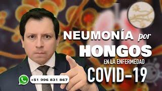 NEUMONÍA POR HONGOS EN LA ENFERMEDAD COVID-19, LO QUE DEBEMOS SABER!!!