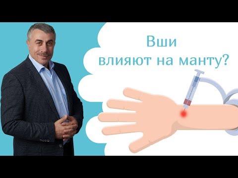 Вши влияют на манту? | Доктор Комаровский