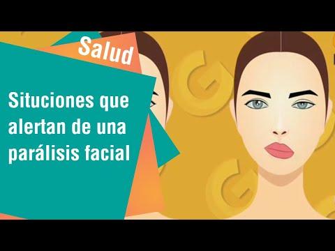 Situaciones que alertan sobre una parálisis facial   Salud