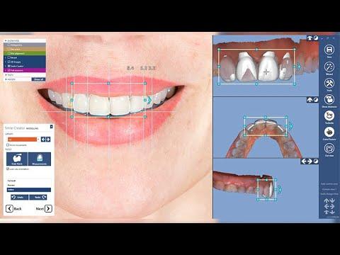 Planmeca PlanCAD® Premium Smile Creator