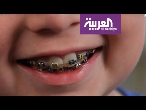 صباح العربية | ما هو تقويم الأسنان الوقائي؟
