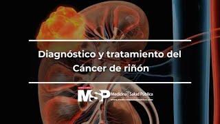 Diagnóstico y tratamiento del Cáncer de riñón