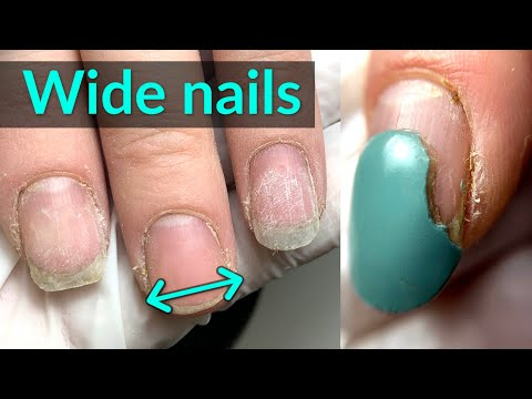 Wide Nails Transformation - Best Shape for Extensions