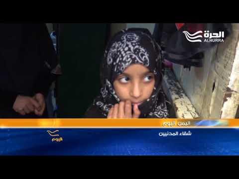 بعد سنوات من الحرب التي تغذيها إيران تسليحا وتمويلا... شقاء اليمن