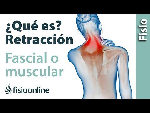 Retracción muscular o fascial - Qué es y cuáles son sus causas