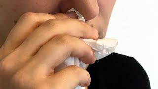 Sinusitis: ¿Cuáles son las causas y los síntomas de esta enfermedad