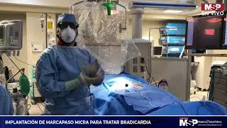 Implantación del marcapaso Micra