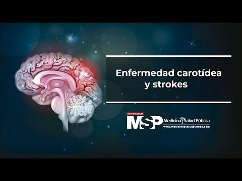 Enfermedad Carotídea y strokes