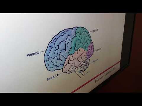 Hjärntrötthetsgrupp på Stockholms Sjukhem