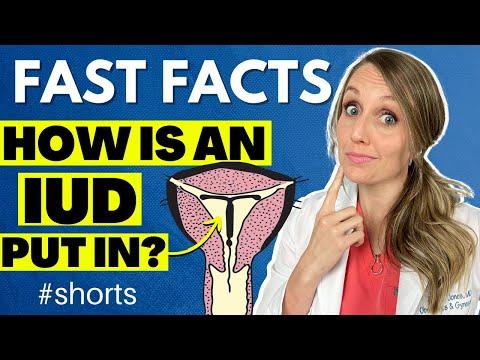 How is IUD put in the uterus? #shorts