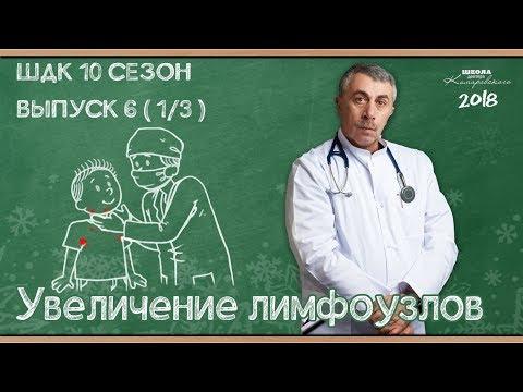 Симптомы: Увеличение лимфоузлов — Доктор Комаровский