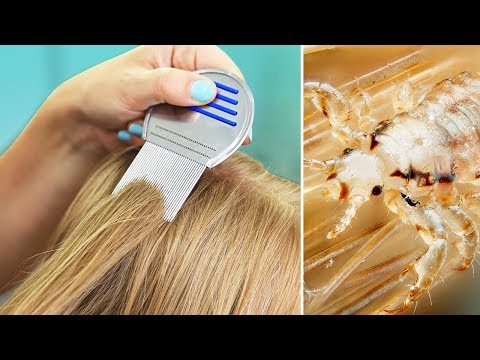 LiCE iN OUR HOUSE? | Tips for Natural Lice Removal & Treatment
