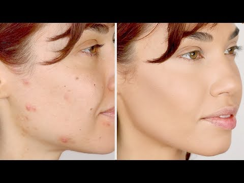 HOW TO COVER ACNE | Flawless Foundation Routine for Acne | Eman