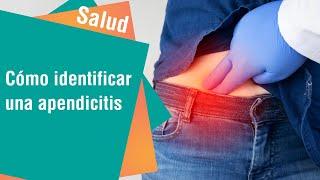 Aprenda a diferenciar la apendicitis de otros padecimientos | Salud
