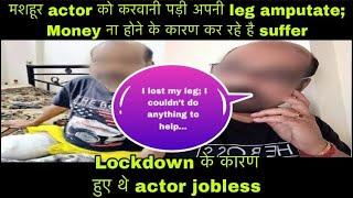 THIS Yeh Hai Mohabbatein actor Loses His Leg Due To High Diabetes And Lack Of Work   Ritikabackslashu0026Vishakha - TELLYCHAKKAR