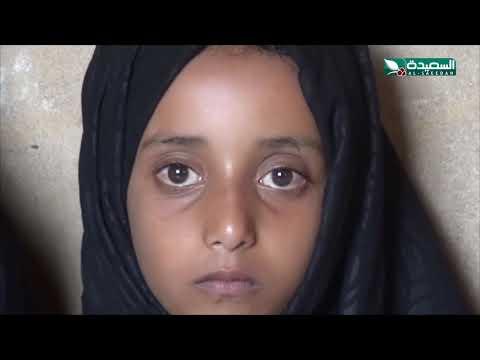 ثلاثينية تعاني وأطفالها الثلاثة الفقر والجوع والمرض | سنابل الخير | 20-9-2021م
