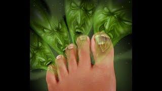 ¿En qué consiste el tratamiento de la onicomicosis