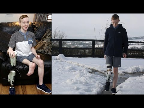 connectYoutube - 15-Year-Old Gets Foot Re-Attached Backwards After Leg Is Amputated From Cancer