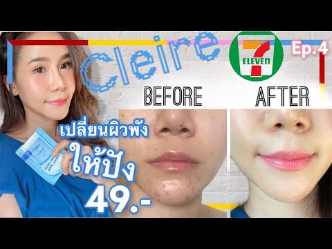 Claire-triple-c-treatment-pad-