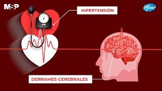 Concienciación de derrame cerebral y día mundial de hipertensión arterial