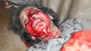 طفلة أصيبت جراء قصف طيران الاحتلال الروسي لبلدة لكفر