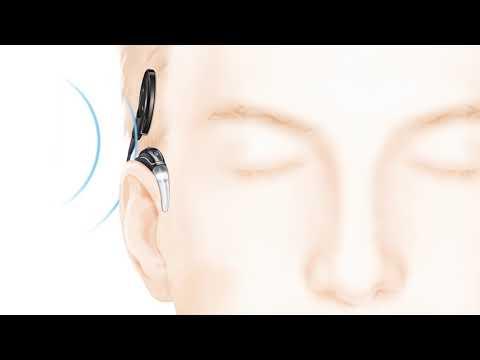 Wie funktioniert ein Cochlea-Implantat? (Deutsch)