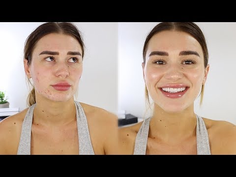 5 MIN EVERYDAY MAKEUP TUTORIAL // HIDING MY ACNE