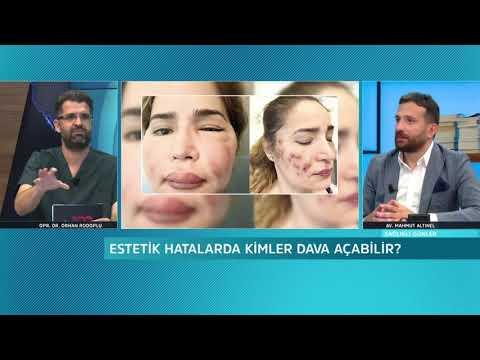 Estetik hatası davaları - Av. Arb. Mahmut Altınel - Sağlıklı Günler - 23 Haziran 2020