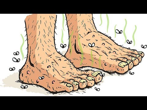 how to get rid of trench foot fast