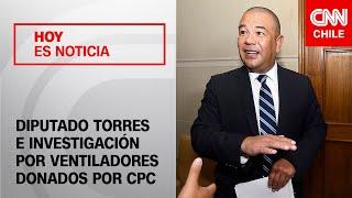 Diputado Torres habla sobre la investigación por los ventiladores donados por la CPC