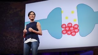 What you can do to prevent Alzheimer's | Lisa Genova