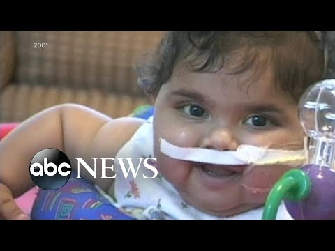 Infant transplant patient looks back at 9/11 miracle