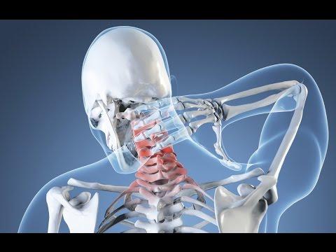 Вертебральная цервикокраниалгия на фоне остеохондроза