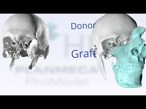 Face transplant operation simplified