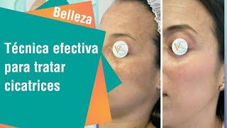 Técnica efectiva para tratar cicatrices y acné | Belleza
