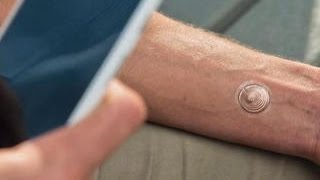 CNET Update - Unlock your phone with Motorola's 'digital tattoo'