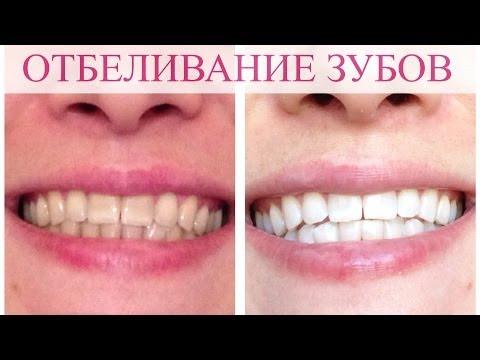 самое лучшее отбеливание зубов отзывы