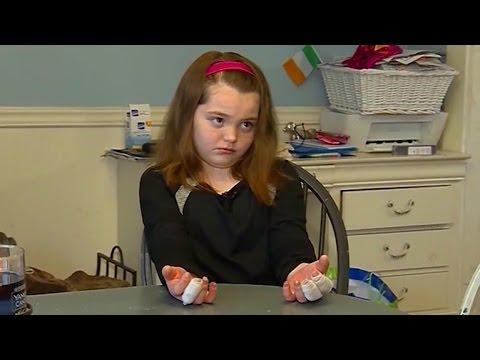 Girl suffers third-degree burns making homemade slime